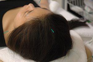 美容鍼灸コース 約60分 3,500円 骨格調整→リンパマッサージ→鍼灸or指圧→美顔鍼